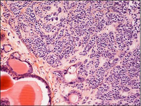 Il Carcinoma è un Tumore Maligno