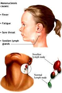 Sintomi e Cura della Mononucleosi Infettiva